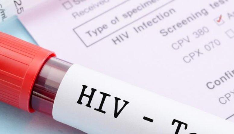 Kā noskaidrot vai neesi HIV inficēts?