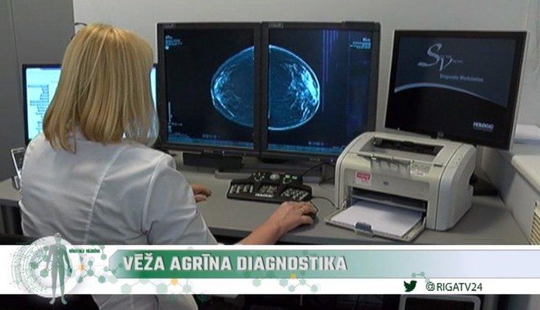 Ieskaties: Zelta standarts krūts vēža diagnostikā