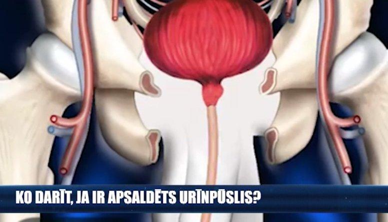 Ko darīt, ja ir apsaldēts urīnpūslis?