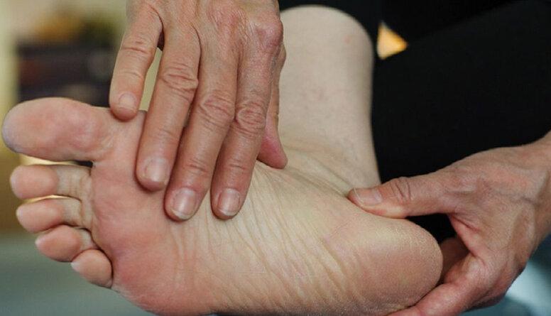 Vai zilumi un izsitumi uz kāju pirkstiem liecina par inficēšanos ar koronavīrusu?