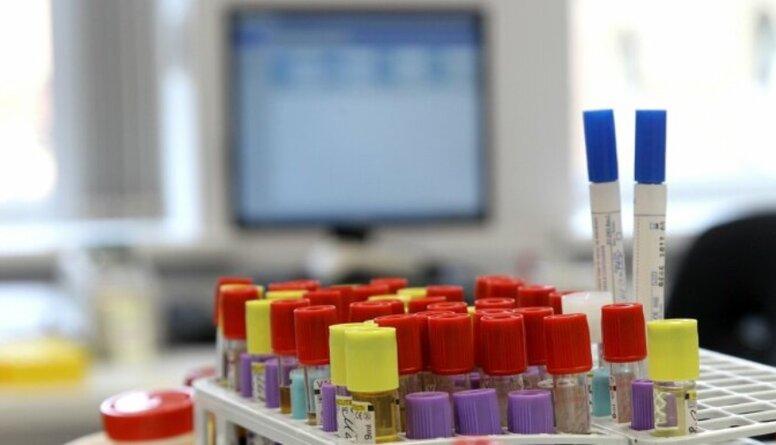 """Lapiņa: """"Centrālajā Laboratorijā"""" iespējams veikt Covid-19 antivielu testu"""