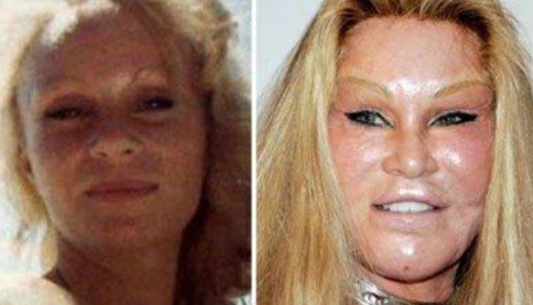 Speciālistes: Bieži jāatrunā pacienti no sejas izkropļošanas
