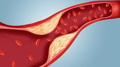 Kas jāzina par zema blīvuma jeb slikto holesterīnu?