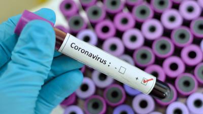 Vai ir pieejami preparāti, ko varētu izmantot pret koronavīrusu?