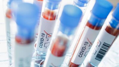 Krauze: Kāpēc informācija par Covid-19 testiem un antivielu testiem ir tik pretrunīga?!