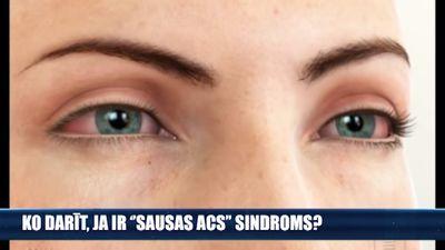 """Ko darīt, ja ir """"sausās acs"""" sindroms?"""