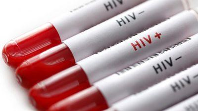 Latvijā HIV un AIDS jaunatklāto inficēto pacientu skaits turpina pieaugt