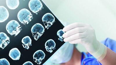 Kā diagnosticē un ārstē epilepsiju?