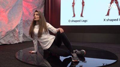 Līkās X un O formas kājas: kā tādas novērst?