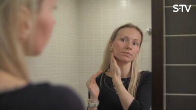 Kā pareizi kopt sausu ādu un to mitrināt?